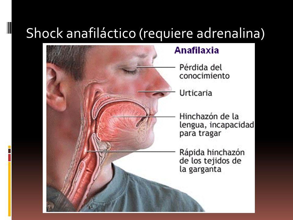 Shock anafiláctico (requiere adrenalina)