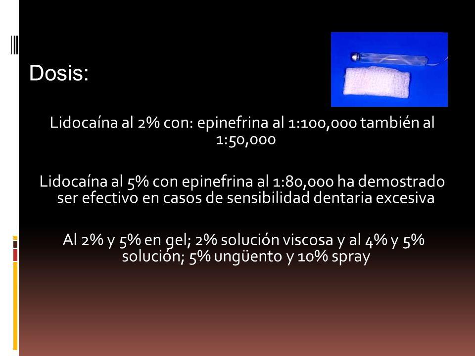 Dosis: Lidocaína al 2% con: epinefrina al 1:100,000 también al 1:50,000 Lidocaína al 5% con epinefrina al 1:80,000 ha demostrado ser efectivo en casos de sensibilidad dentaria excesiva Al 2% y 5% en gel; 2% solución viscosa y al 4% y 5% solución; 5% ungüento y 10% spray