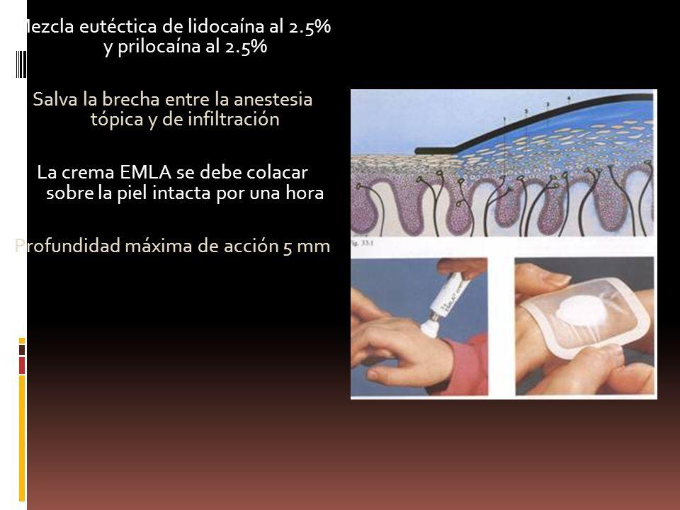 Mezcla eutéctica de lidocaína al 2.5% y prilocaína al 2.5% Salva la brecha entre la anestesia tópica y de infiltración La crema EMLA se debe colacar sobre la piel intacta por una hora Profundidad máxima de acción 5 mm