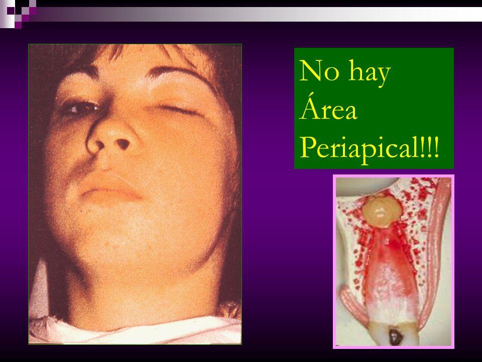 ABSCESO FÉNIX Se origina de una lesión crónica que se agudiza.