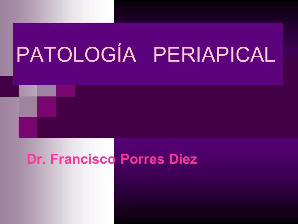 CLASIFICACIÓN Agudas: - Periodontítis Apical Aguda (PAA) - Absceso Apical Agudo (AAA) - Absceso Fénix Crónicas: - Periodontítis Apical Crónica (PAC) - Periodontítis Apical Supurativa (PAS) - Osteítis Condensante