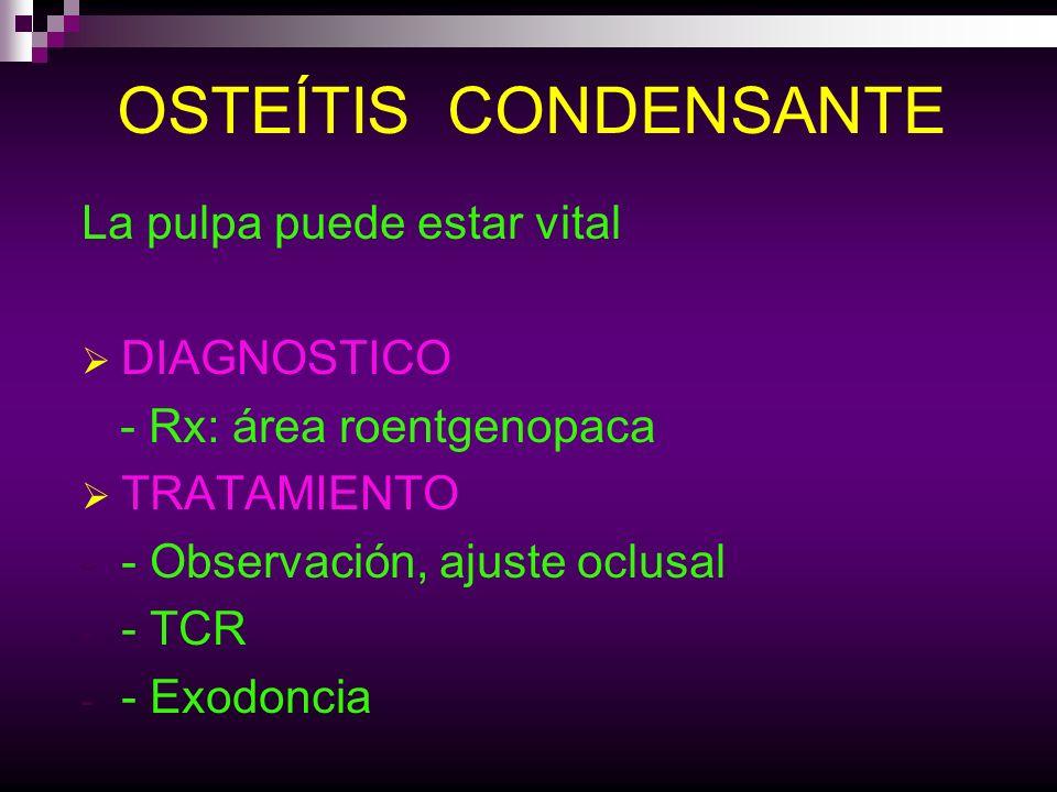 Osteítis Condensante