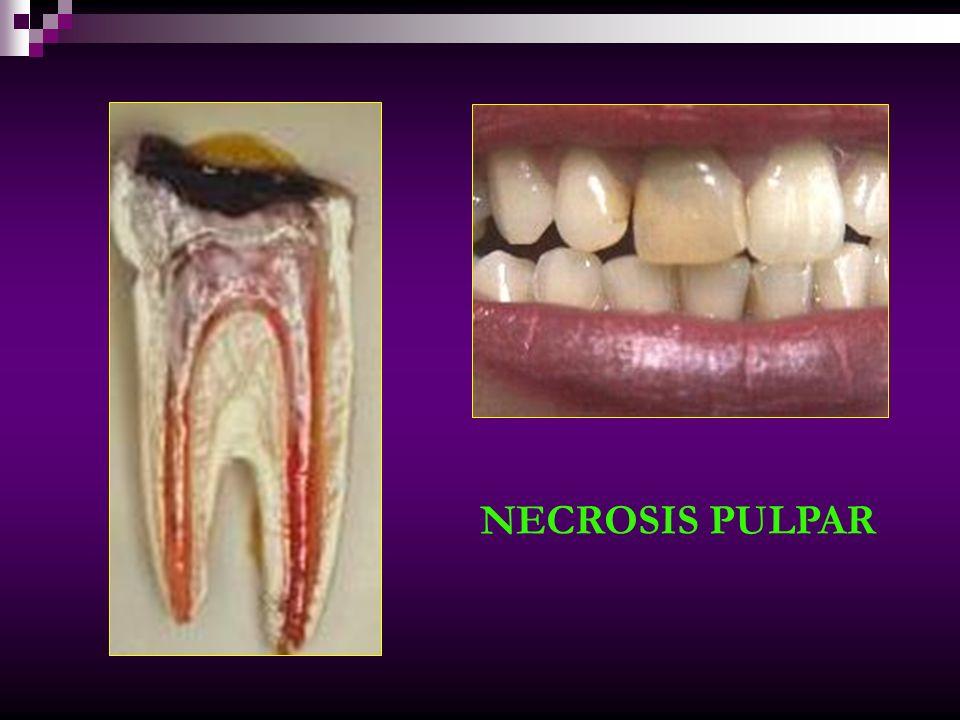NECROSIS Zona de Necrosis Zona de infiltrado de leucocitos Zona de células fibroblásticas Zona de fibras colágenas