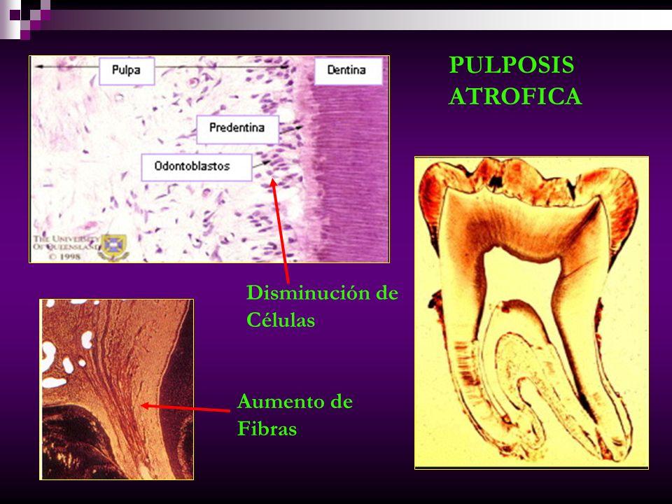 PULPOSIS CÁLCICA Calcificaciones en paredes de vasos sanguíneos Siguen la dirección de nervios y fibras