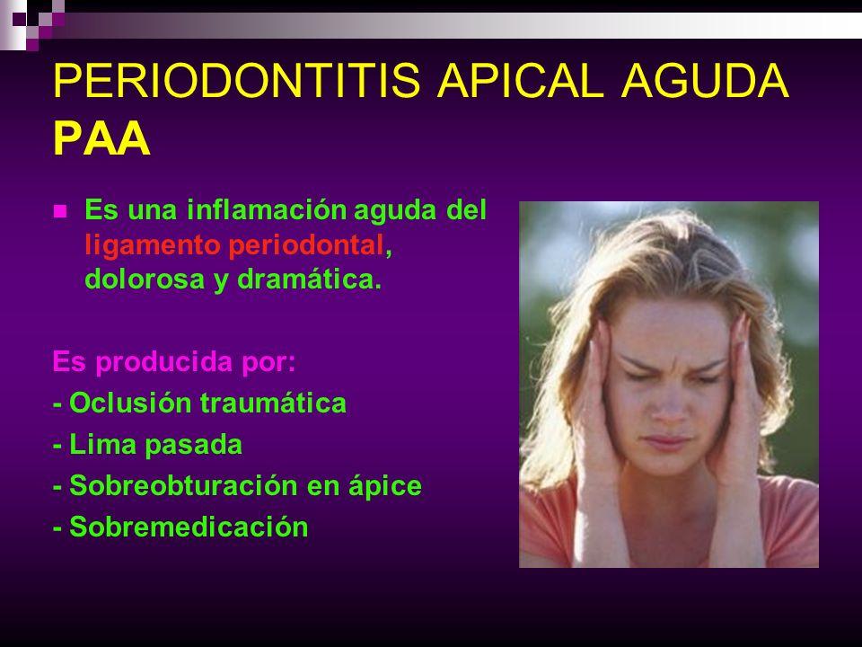 PERIODONTITIS APICAL AGUDA PAA DIAGNOSTICO: -Dolor espontáneo -Dolor a la percusión -No visible en la Rx.