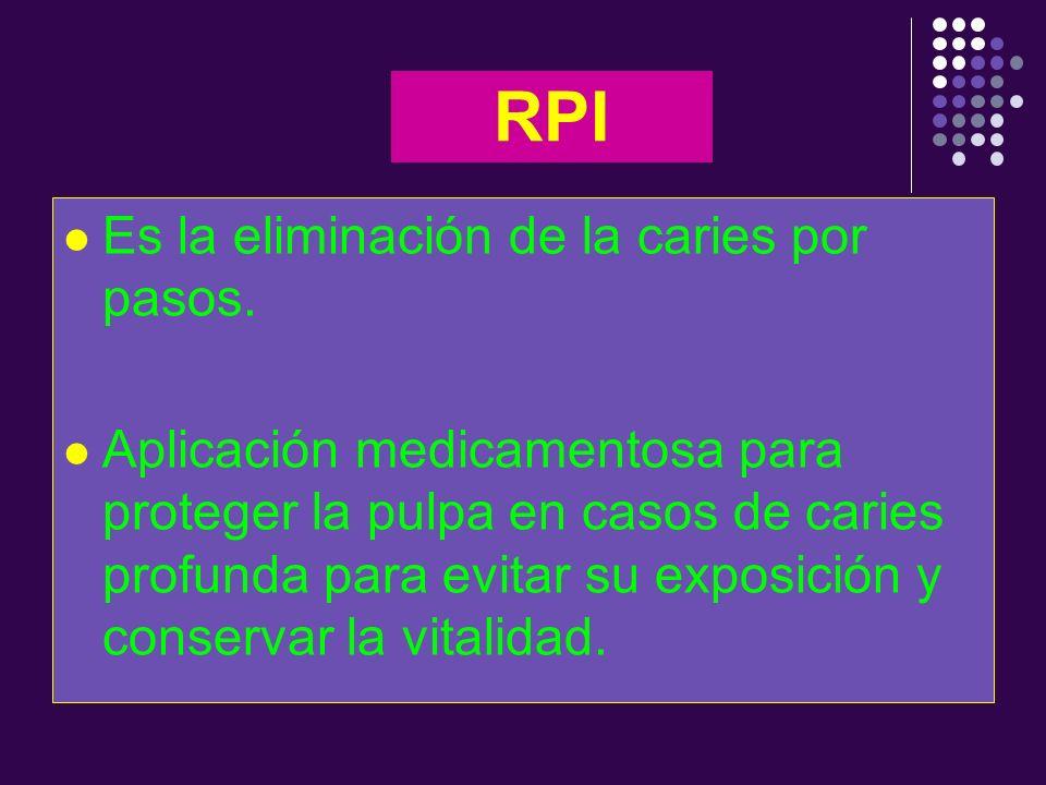 RPI Es la eliminación de la caries por pasos. Aplicación medicamentosa para proteger la pulpa en casos de caries profunda para evitar su exposición y