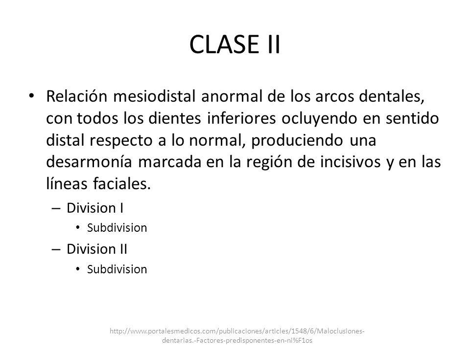 CLASE II Relación mesiodistal anormal de los arcos dentales, con todos los dientes inferiores ocluyendo en sentido distal respecto a lo normal, produc