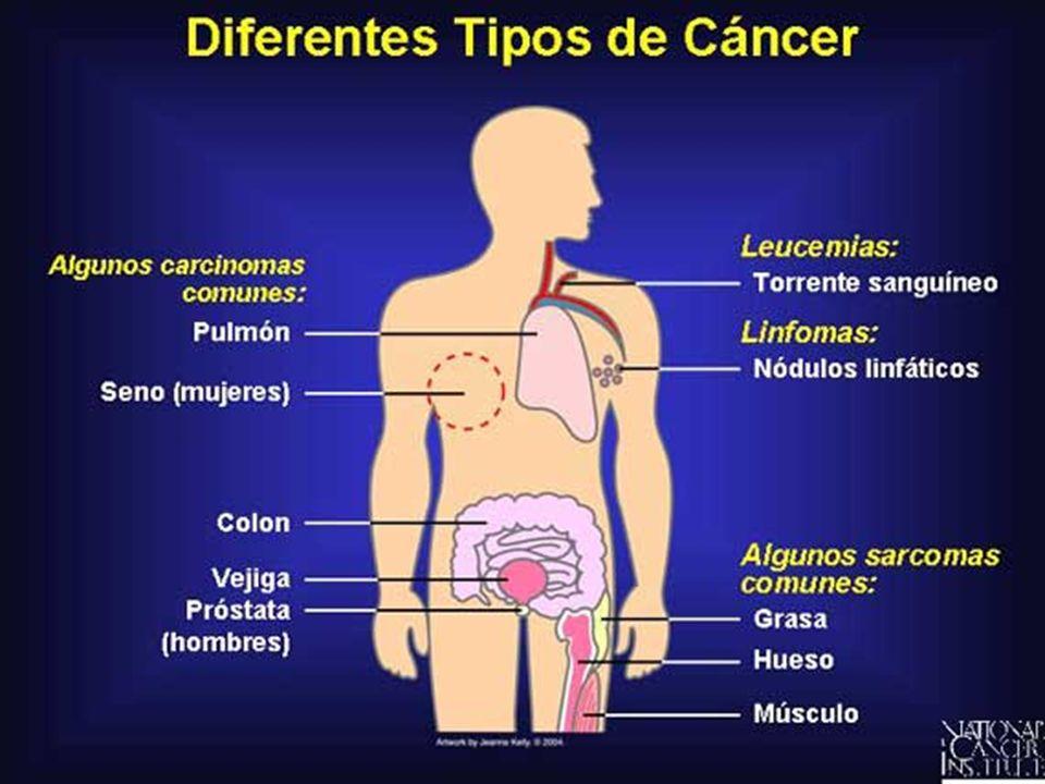 ETIOLOGÍA CARCINÓGENOS QUÍMICOS CARCINÓGENOS FÍSICOS (radiación solar, ionizante, etc) CARCINÓGENOS MICROBIOLÓGICOS (virus, bacterias, hongos, etc.).