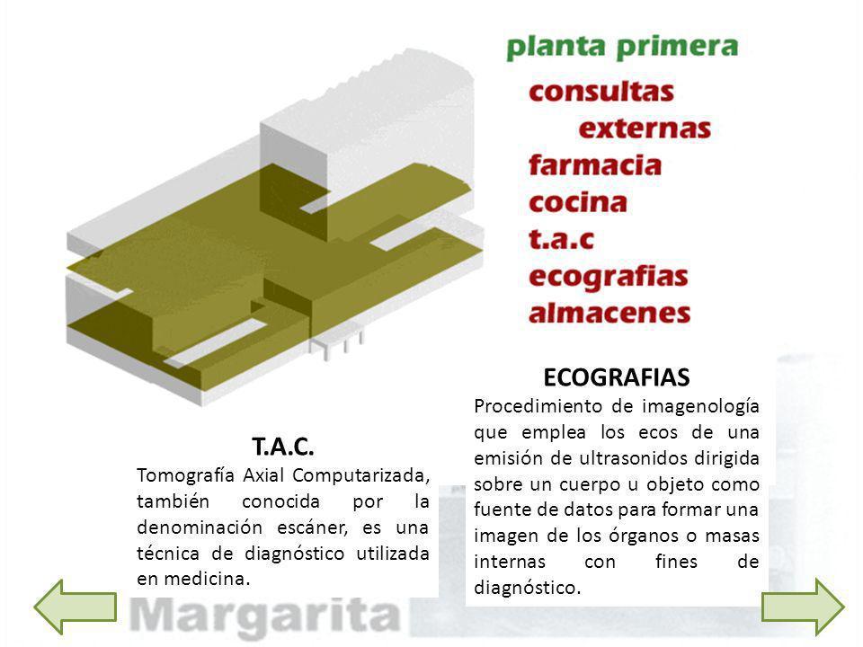T.A.C. Tomografía Axial Computarizada, también conocida por la denominación escáner, es una técnica de diagnóstico utilizada en medicina. ECOGRAFIAS P