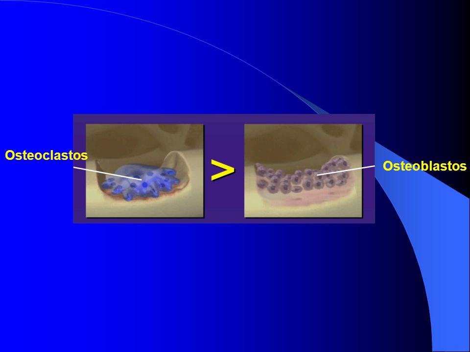 Osteoblastos Osteoclastos