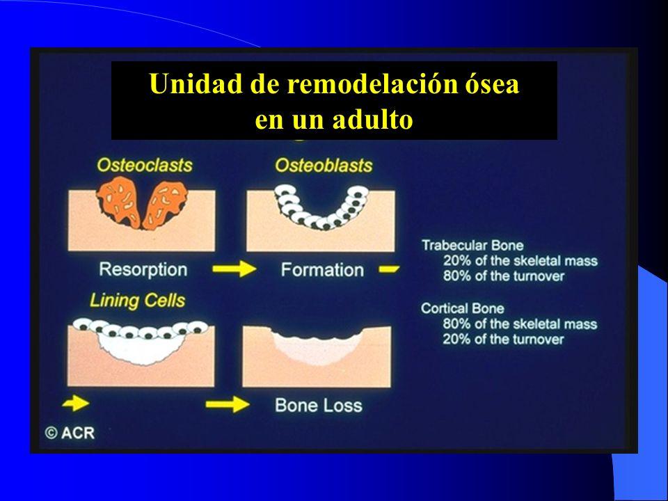 Unidad de remodelación ósea en un adulto