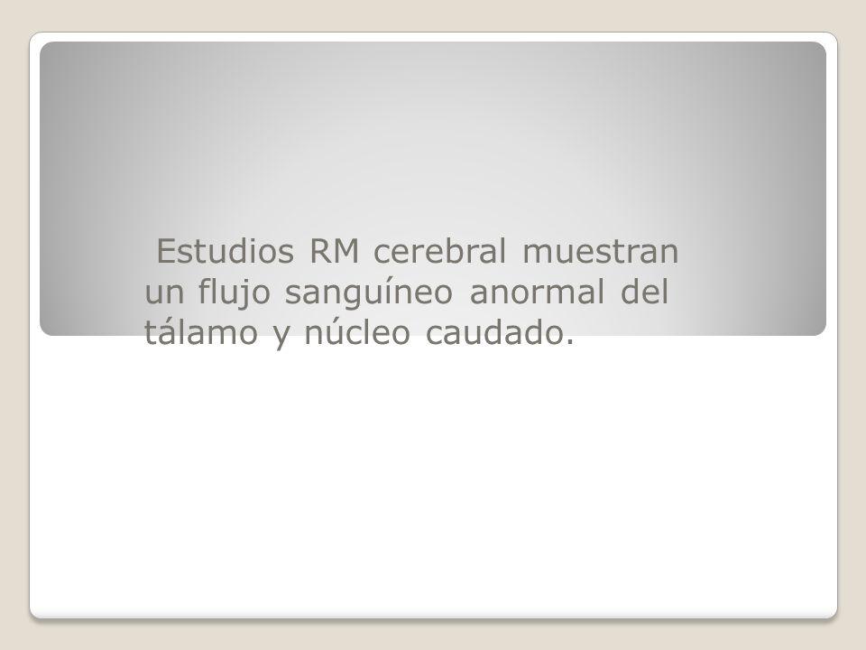 Estudios RM cerebral muestran un flujo sanguíneo anormal del tálamo y núcleo caudado.