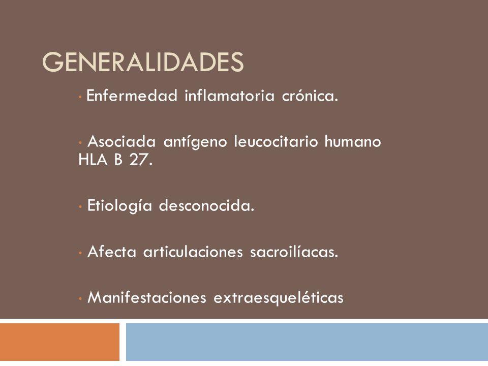 MANIFESTACIONES EXTRAESQUELÉTICAS Uveítis anterior aguda.