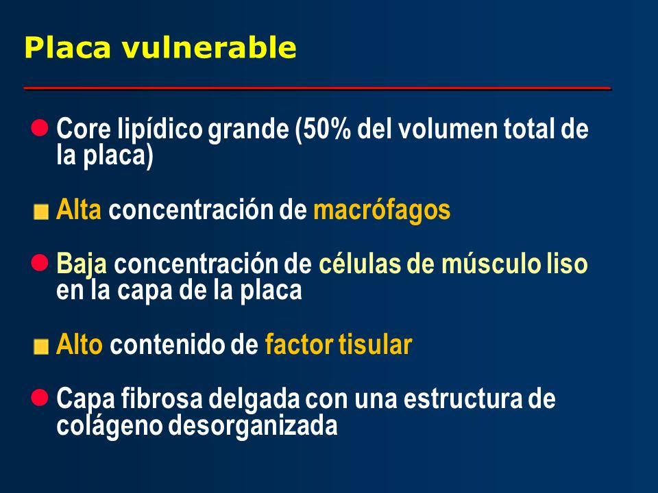 Placa vulnerable l Core lipídico grande (50% del volumen total de la placa) Alta concentración de macrófagos l Baja concentración de células de múscul