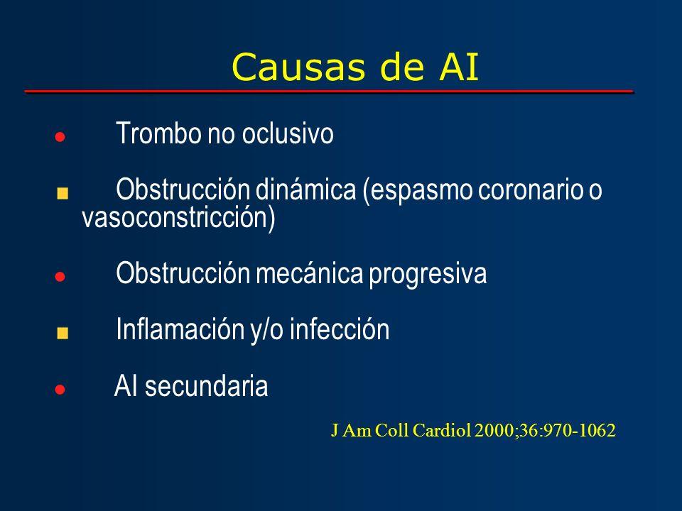 Causas de AI Trombo no oclusivo Obstrucción dinámica (espasmo coronario o vasoconstricción) Obstrucción mecánica progresiva Inflamación y/o infección