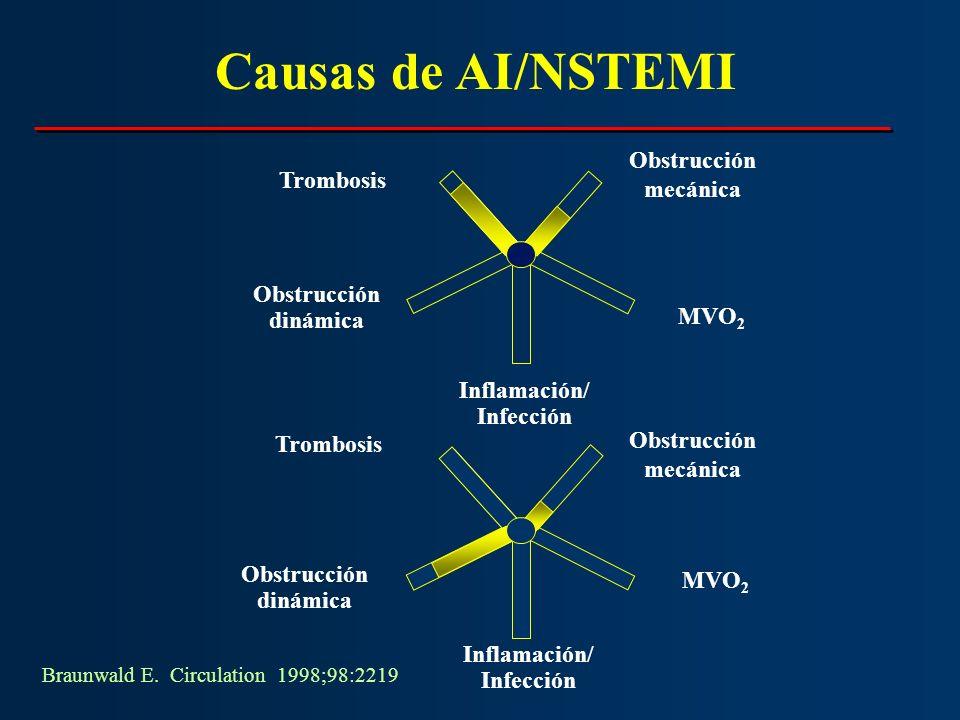 Trombosis Obstrucción mecánica MVO 2 Obstrucción dinámica Inflamación/ Infección Braunwald E. Circulation 1998;98:2219 Trombosis Obstrucción dinámica