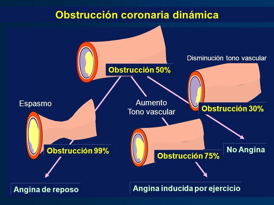 - Angina de reposo Angina inducida por ejercicio No Angina Obstrucción 99% Obstrucción 75% Obstrucción 30% Obstrucción 50% Espasmo Aumento Tono vascul