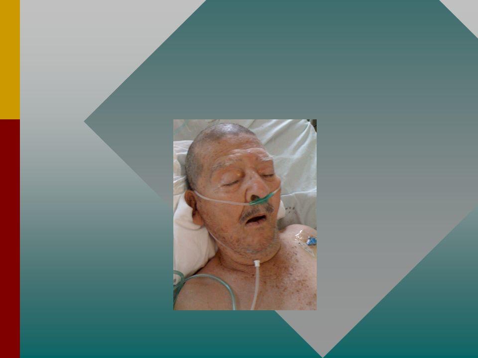 INSUFICIENCIA RESPIRATORIA MANEJO TERAPEUTICO OXIGENACIONOXIGENACION -Cánula nasal -Venturi -Máscara con reservorio -VMA