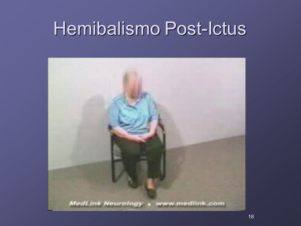 Hemibalismo Post-Ictus 18