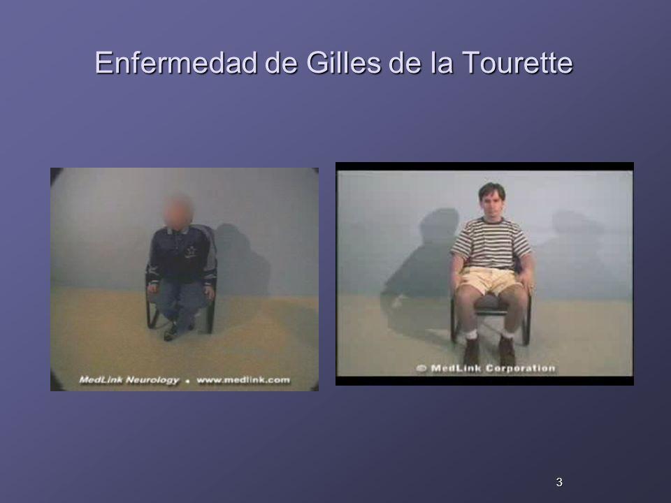 Enfermedad de Gilles de la Tourette 3
