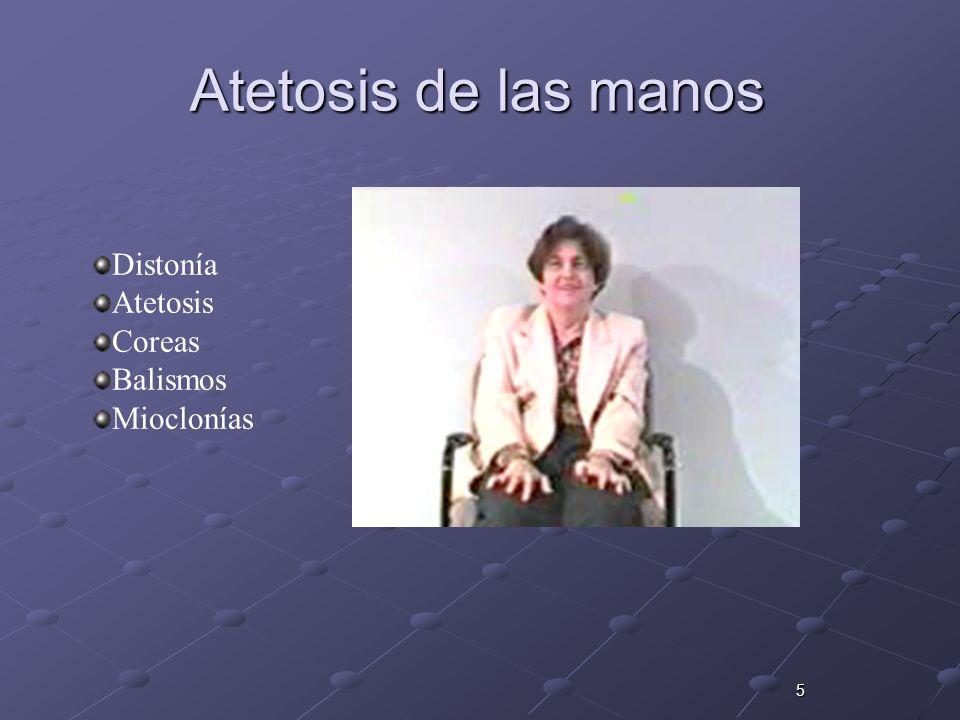 5 Atetosis de las manos Distonía Atetosis Coreas Balismos Mioclonías