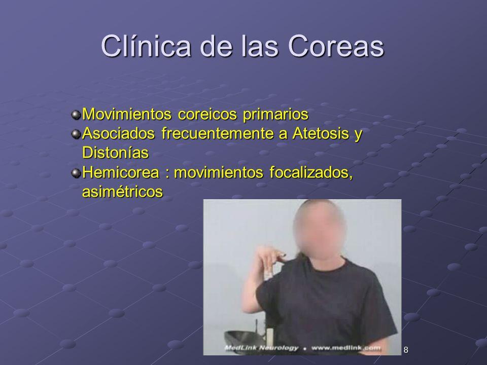 8 Clínica de las Coreas Movimientos coreicos primarios Asociados frecuentemente a Atetosis y Distonías Hemicorea : movimientos focalizados, asimétrico