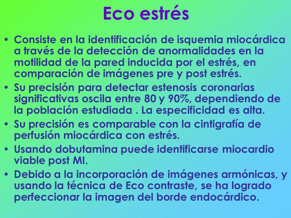 Eco estrés Consiste en la identificación de isquemia miocárdica a través de la detección de anormalidades en la motilidad de la pared inducida por el