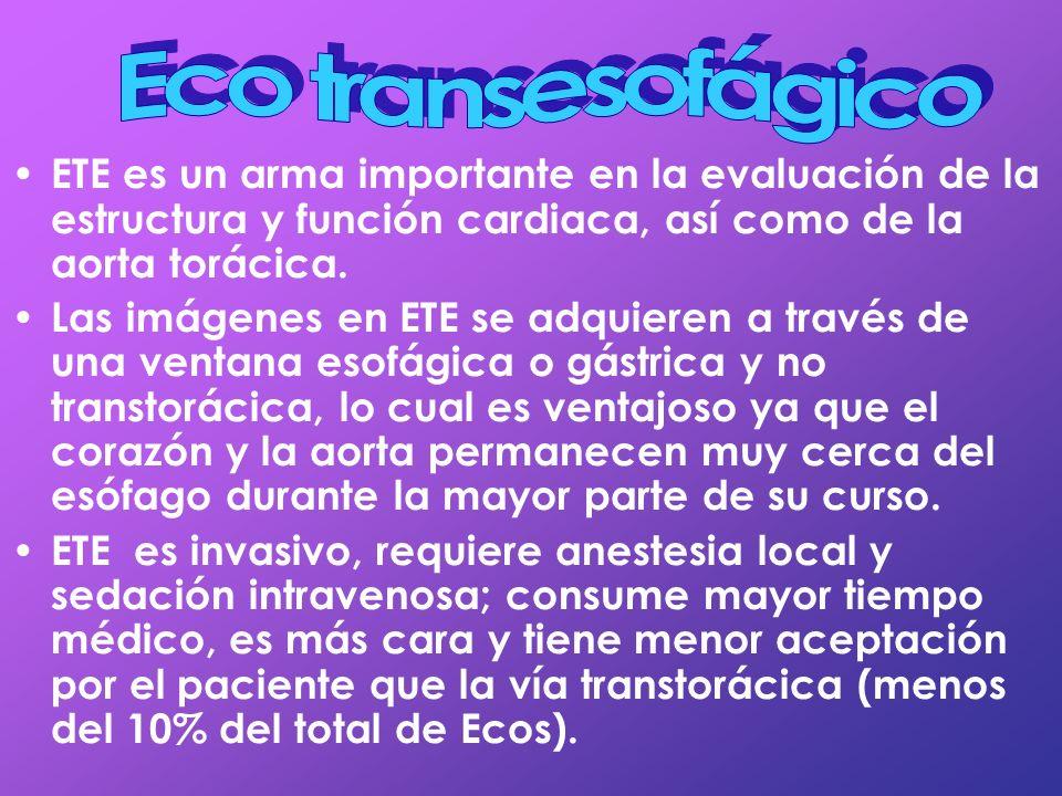 ETE es un arma importante en la evaluación de la estructura y función cardiaca, así como de la aorta torácica. Las imágenes en ETE se adquieren a trav