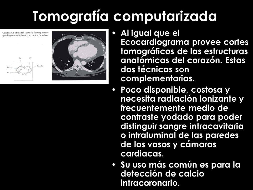Tomografía computarizada Al igual que el Ecocardiograma provee cortes tomográficos de las estructuras anatómicas del corazón. Estas dos técnicas son c
