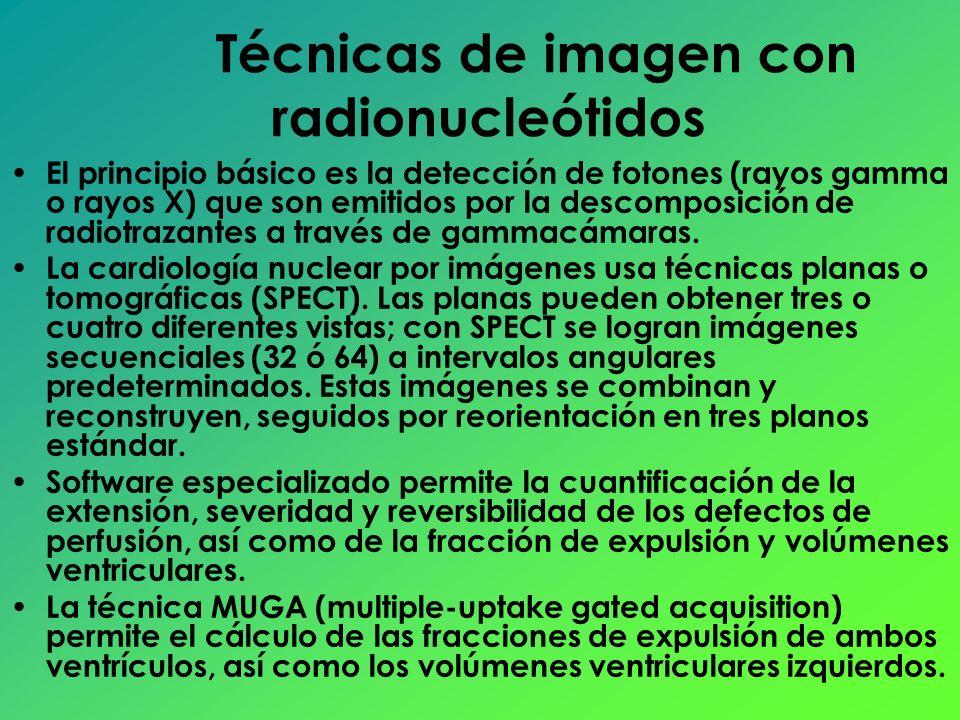 El principio básico es la detección de fotones (rayos gamma o rayos X) que son emitidos por la descomposición de radiotrazantes a través de gammacámar