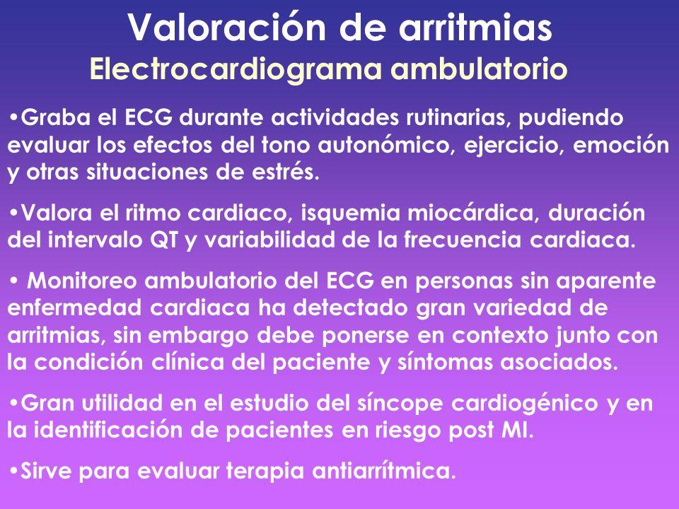 Valoración de arritmias Electrocardiograma ambulatorio Graba el ECG durante actividades rutinarias, pudiendo evaluar los efectos del tono autonómico,