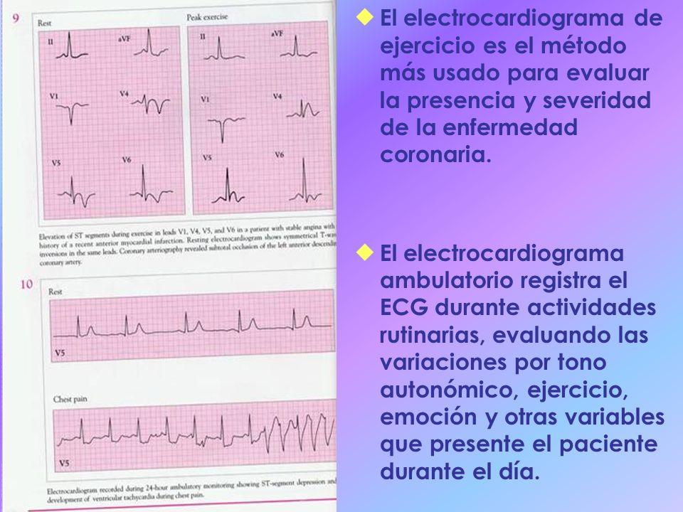 El electrocardiograma de ejercicio es el método más usado para evaluar la presencia y severidad de la enfermedad coronaria. El electrocardiograma ambu