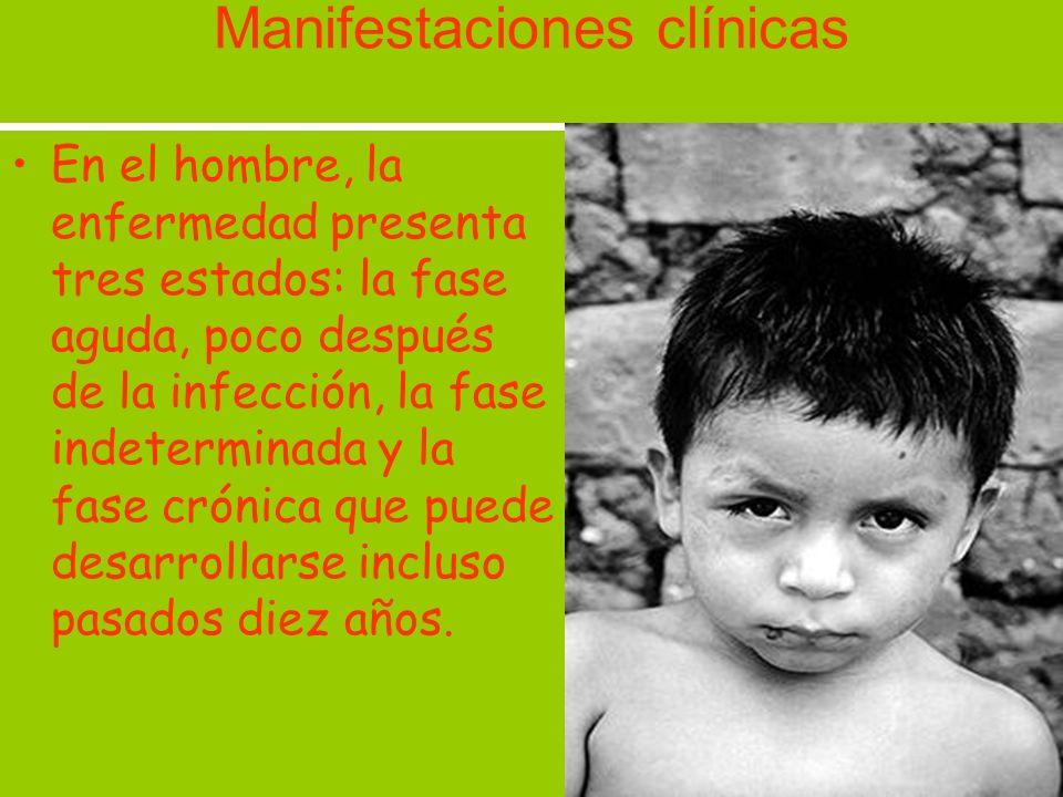 Manifestaciones clínicas En el hombre, la enfermedad presenta tres estados: la fase aguda, poco después de la infección, la fase indeterminada y la fa