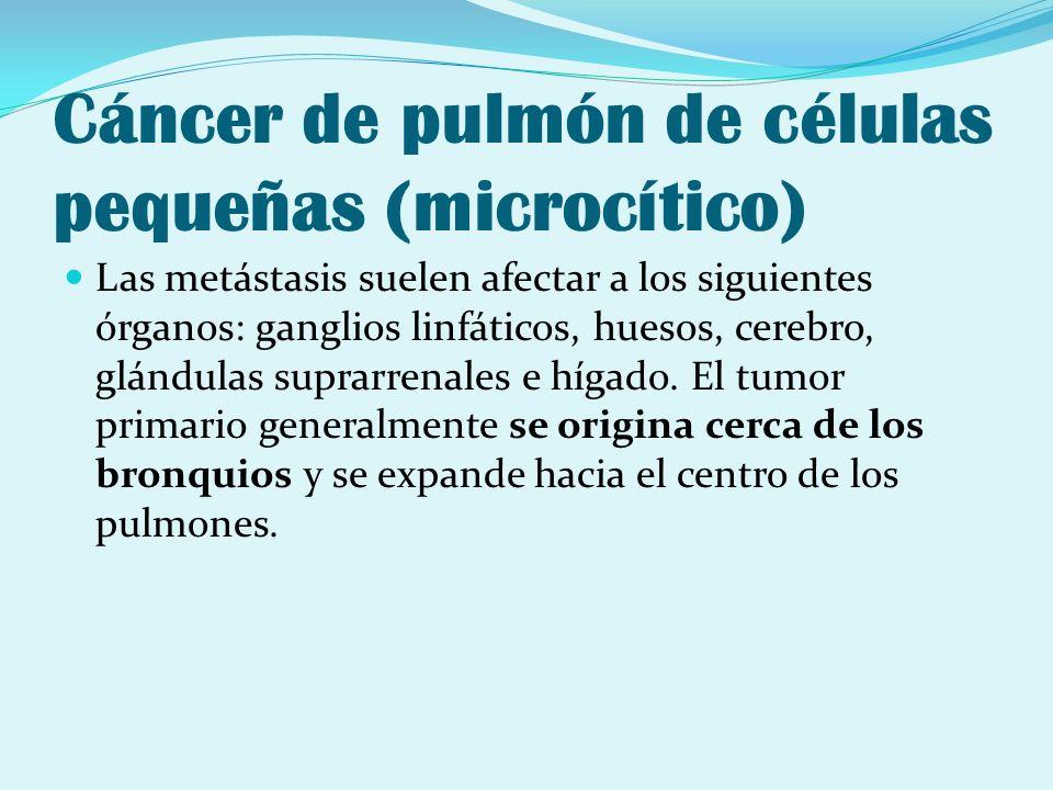 Cáncer de pulmón de células pequeñas (microcítico) Las metástasis suelen afectar a los siguientes órganos: ganglios linfáticos, huesos, cerebro, glánd