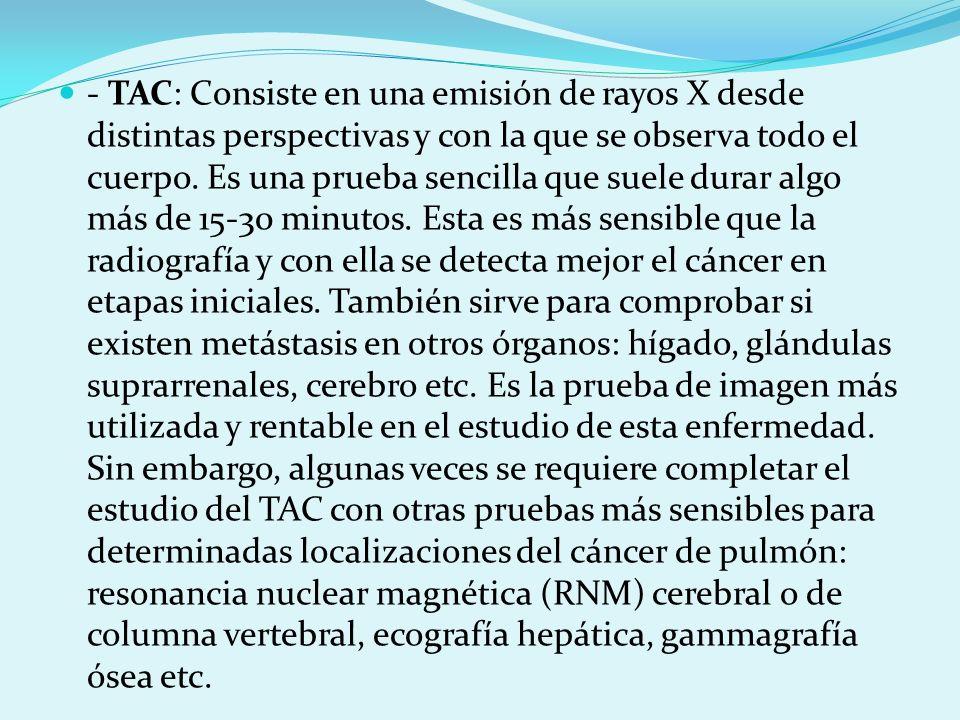 - TAC: Consiste en una emisión de rayos X desde distintas perspectivas y con la que se observa todo el cuerpo. Es una prueba sencilla que suele durar
