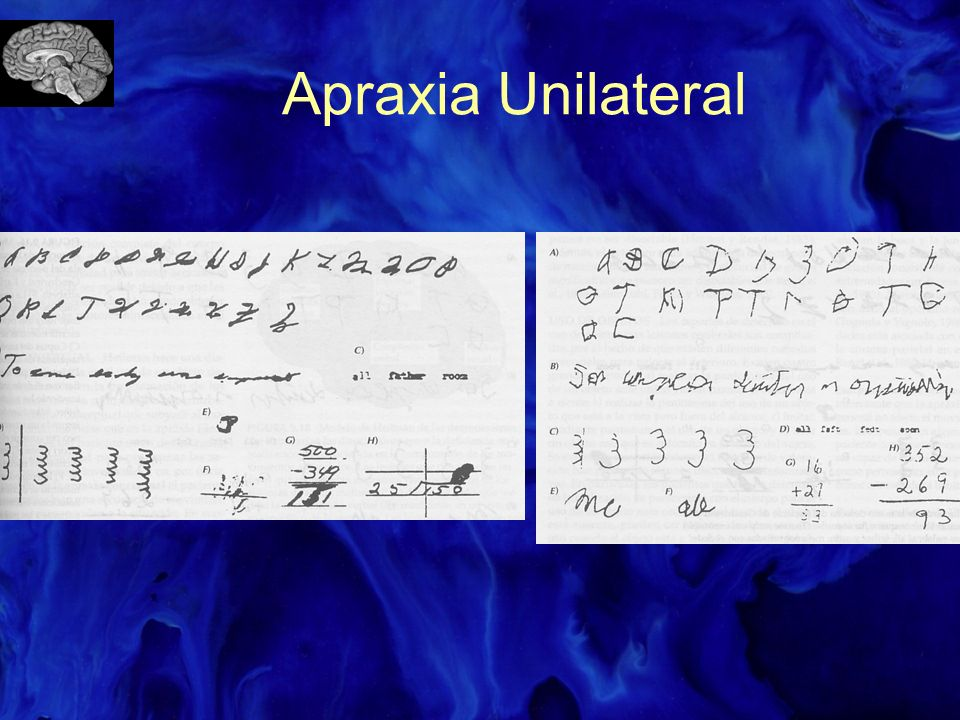 Apraxia Unilateral