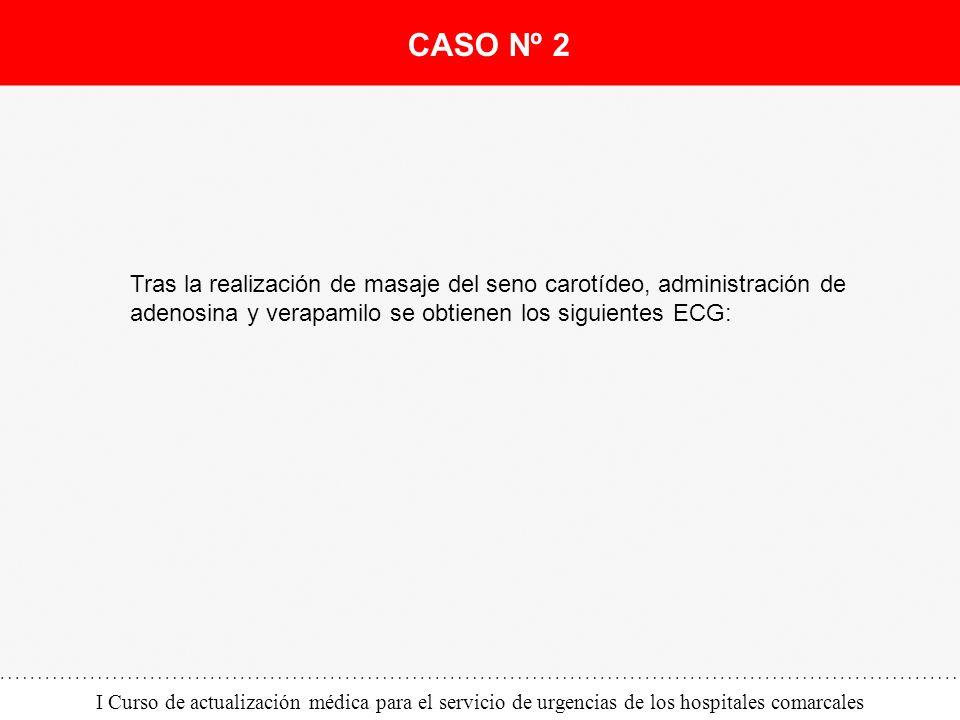 I Curso de actualización médica para el servicio de urgencias de los hospitales comarcales Tras la realización de masaje del seno carotídeo, administr