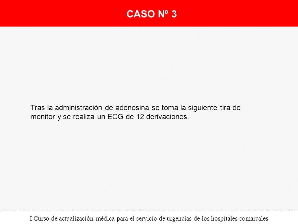 I Curso de actualización médica para el servicio de urgencias de los hospitales comarcales Tras la administración de adenosina se toma la siguiente ti