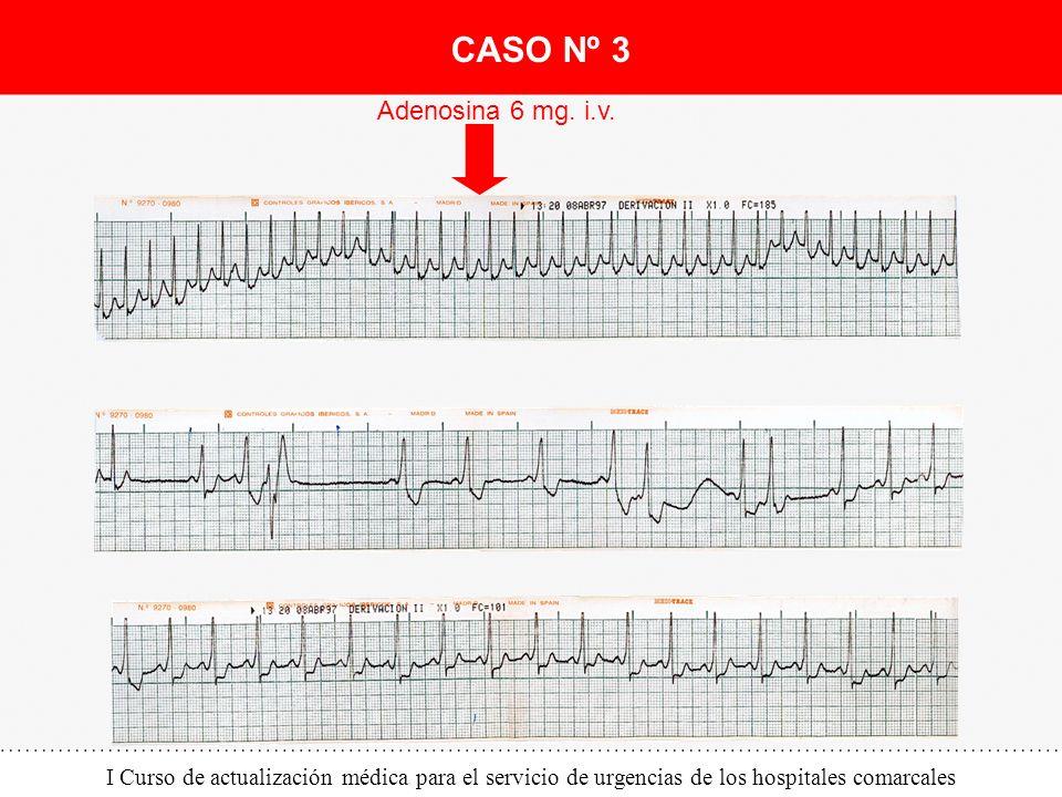 I Curso de actualización médica para el servicio de urgencias de los hospitales comarcales Adenosina 6 mg. i.v. CASO Nº 3