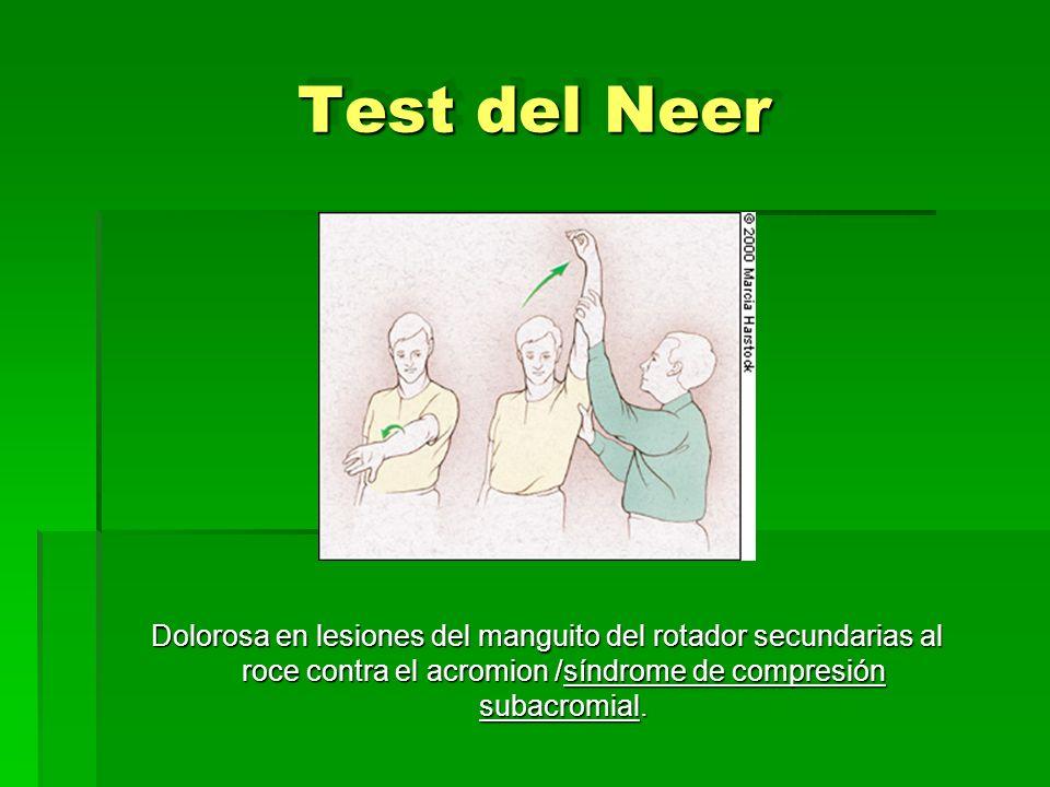 Test del Neer Dolorosa en lesiones del manguito del rotador secundarias al roce contra el acromion /síndrome de compresión subacromial.