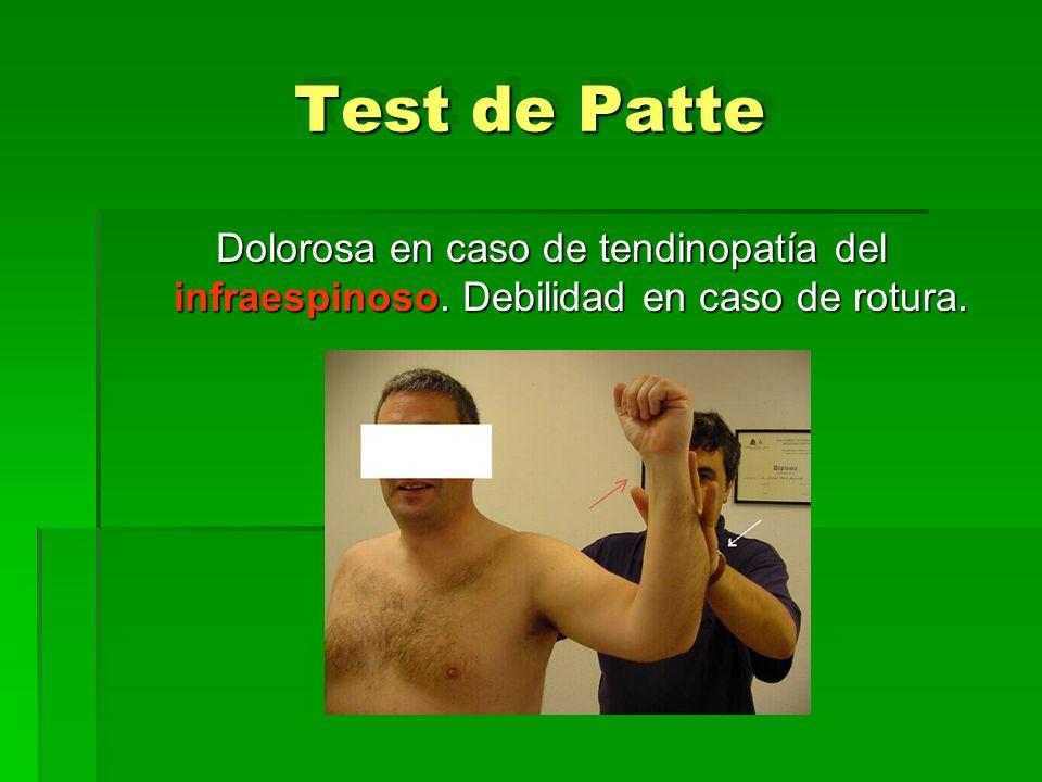 Test de Patte Dolorosa en caso de tendinopatía del infraespinoso. Debilidad en caso de rotura.