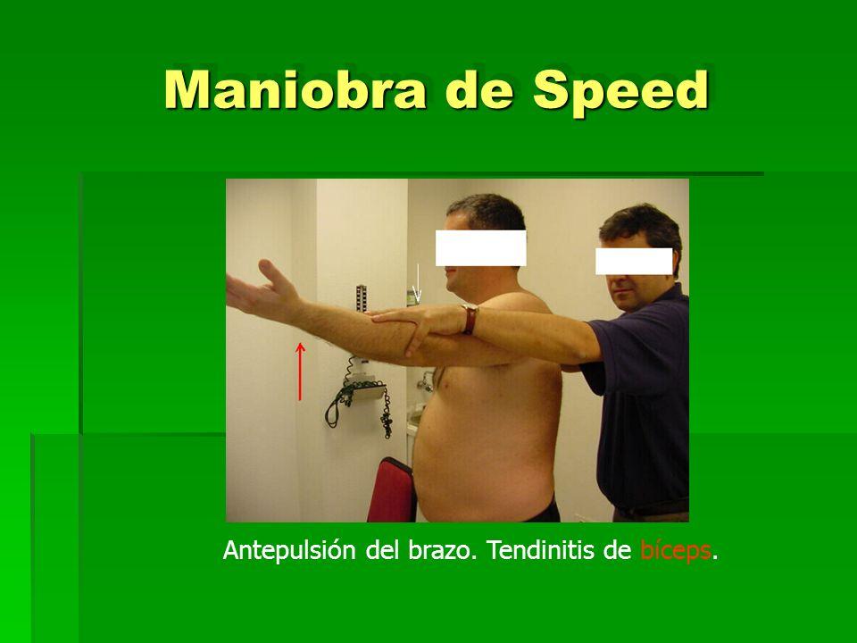 Maniobra de Speed Antepulsión del brazo. Tendinitis de bíceps.