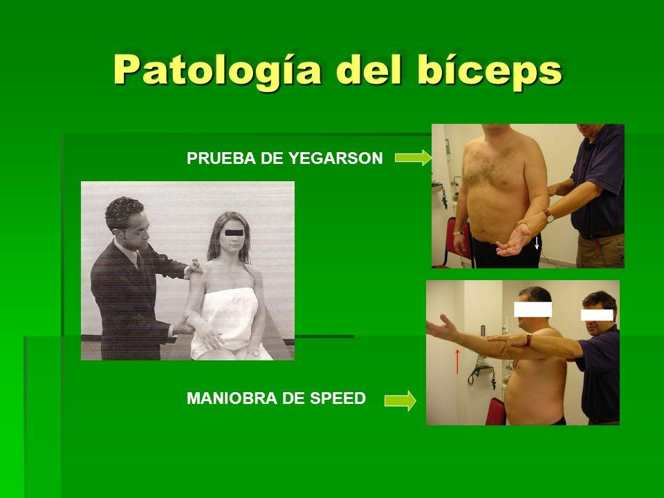 Patología del bíceps PRUEBA DE YEGARSON MANIOBRA DE SPEED