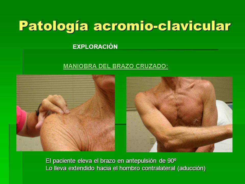 Patología acromio-clavicular EXPLORACIÓN MANIOBRA DEL BRAZO CRUZADO: El paciente eleva el brazo en antepulsión de 90º El paciente eleva el brazo en an