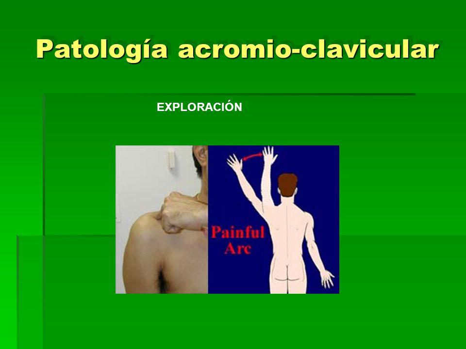 Patología acromio-clavicular EXPLORACIÓN