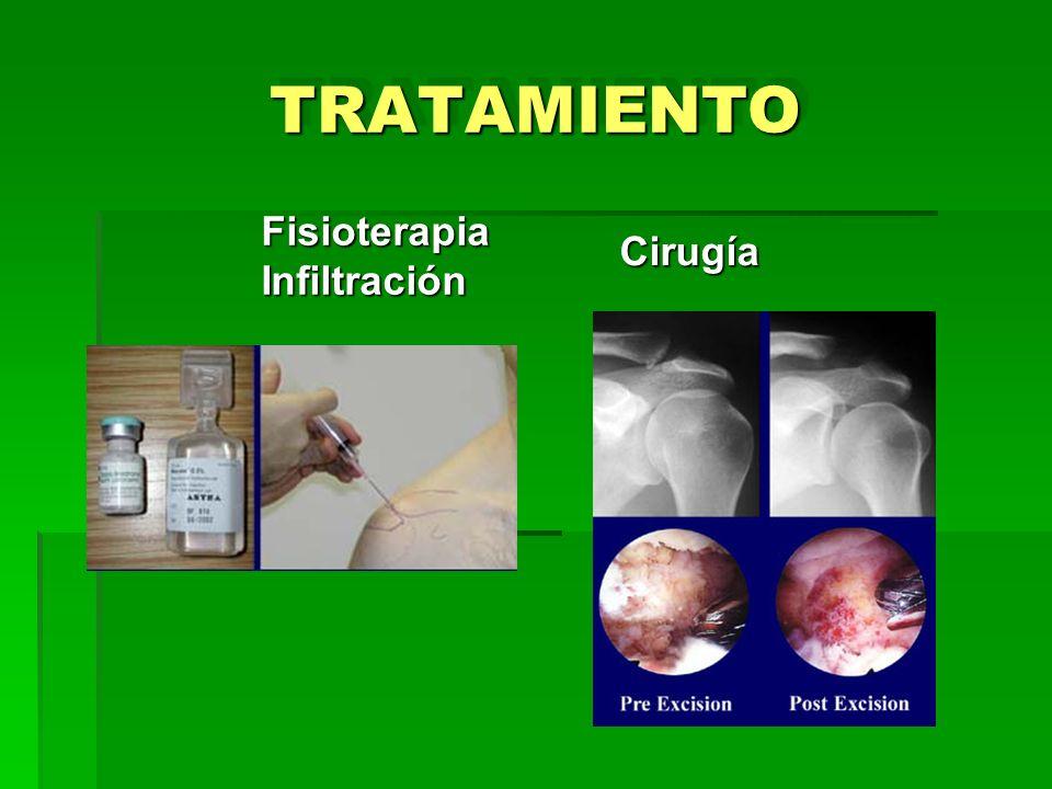 TRATAMIENTOTRATAMIENTO FisioterapiaInfiltración Cirugía