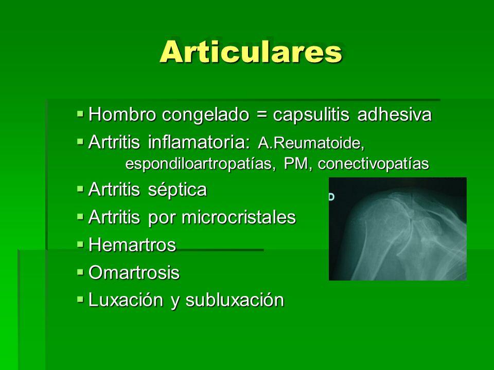 ArticularesArticulares Hombro congelado = capsulitis adhesiva Hombro congelado = capsulitis adhesiva Artritis inflamatoria: A.Reumatoide, espondiloart
