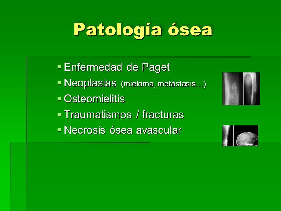 Patología ósea Enfermedad de Paget Enfermedad de Paget Neoplasias (mieloma, metástasis…) Neoplasias (mieloma, metástasis…) Osteomielitis Osteomielitis
