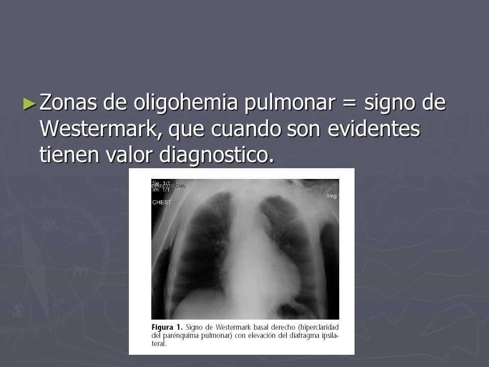 Zonas de oligohemia pulmonar = signo de Westermark, que cuando son evidentes tienen valor diagnostico. Zonas de oligohemia pulmonar = signo de Westerm