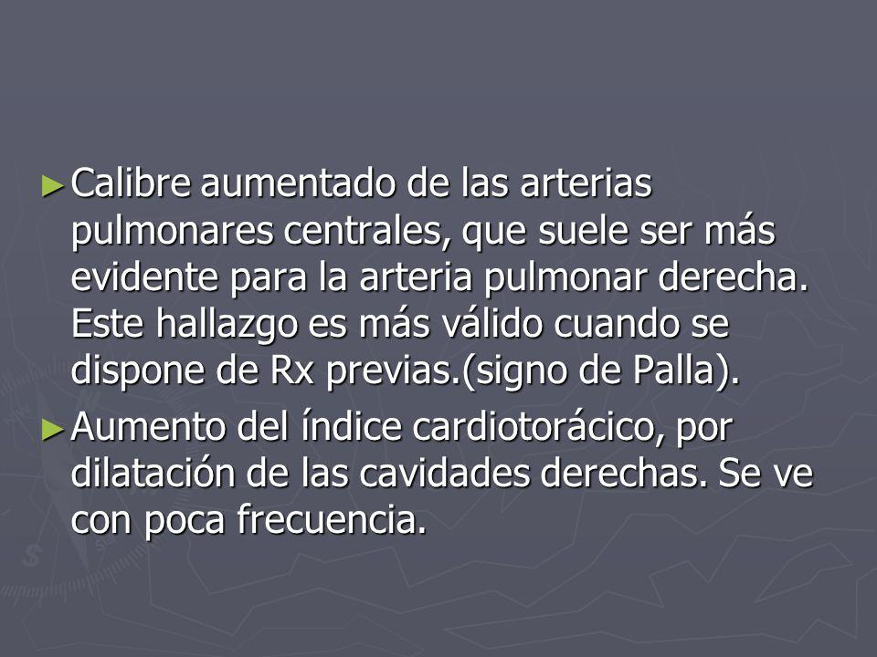 Calibre aumentado de las arterias pulmonares centrales, que suele ser más evidente para la arteria pulmonar derecha. Este hallazgo es más válido cuand